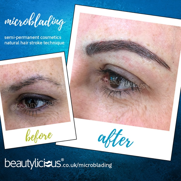 microblading - semi permanent brows in West Sussex | beautylicious®