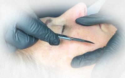 dermaplaning treatment – OFFER £29